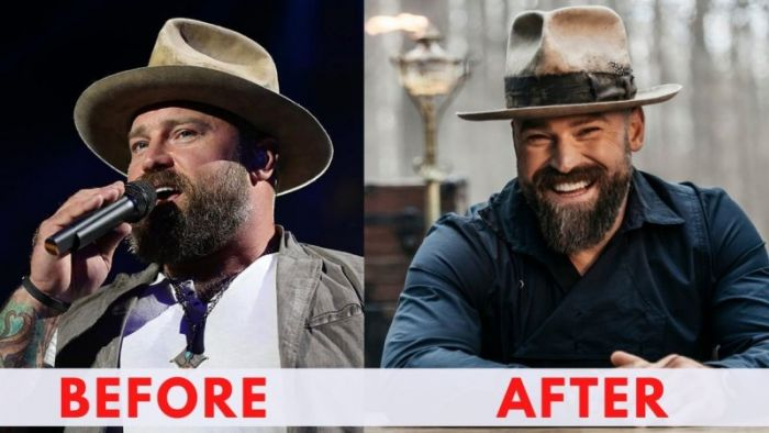 Zac Brown Before and After Weight Loss