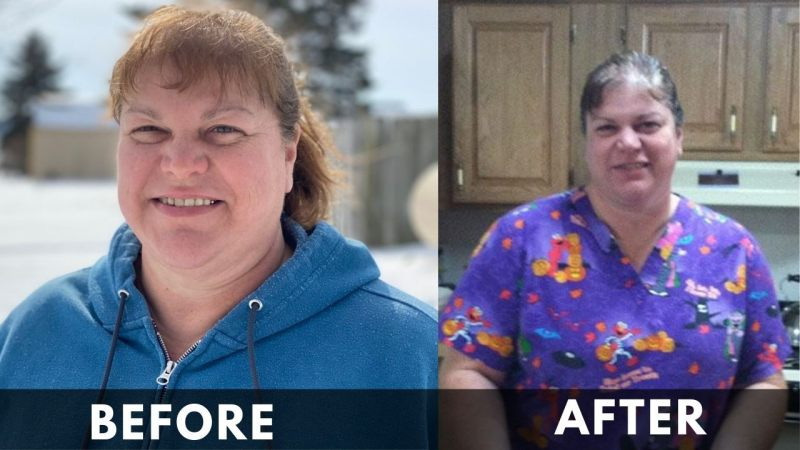 Dr Brenda Before and after weight loss