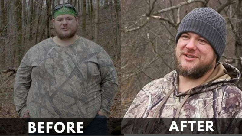 jacob Lowe Before and after
