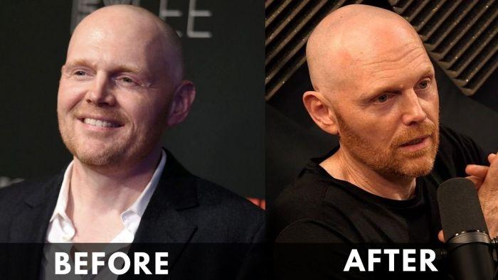 Bill Burr Before After weight loss