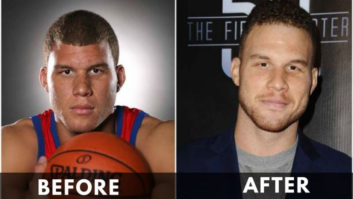 Blake Griffin before and after weight loss