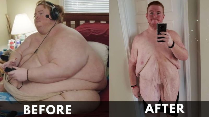 Casey King Before and After