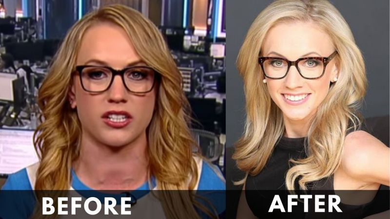 Kat Timpf before after weight loss