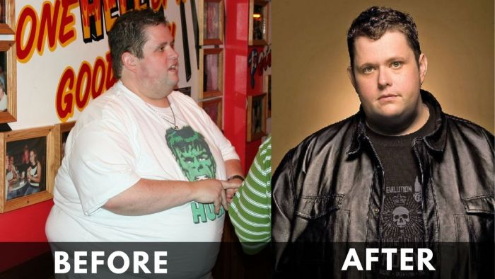 Ralphie May Before After Weight Loss